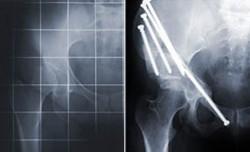 Röntgenbild einer Hüftpfannendysplasie vor und nach einer Beckendreifach-Osteotomie. Sehr gut erkennbar ist die erzielte normalisierte Überdachung des Hüftkopfes auf der operierten Seite.