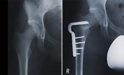 Umstellungsoperation (Varisierungsosteotomie, intertrochantär) vor und nach der Operation. Der Hüftkopf ist nun optimal in die Pfanne eingestellt.
