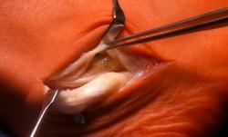Beispiel einer Peronealsehnenruptur (Sehne, die um den Außenköchel verläuft)