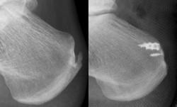 Beispiel eines hinteren Fersensporns vor und nach OP